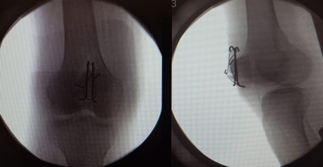 X-rays of right knee showing metal wires around patella