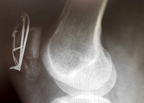 X-ray of right knee showing metal wires around patella